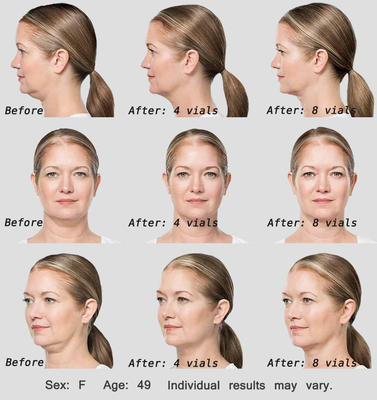 Kybella Injections Before & After