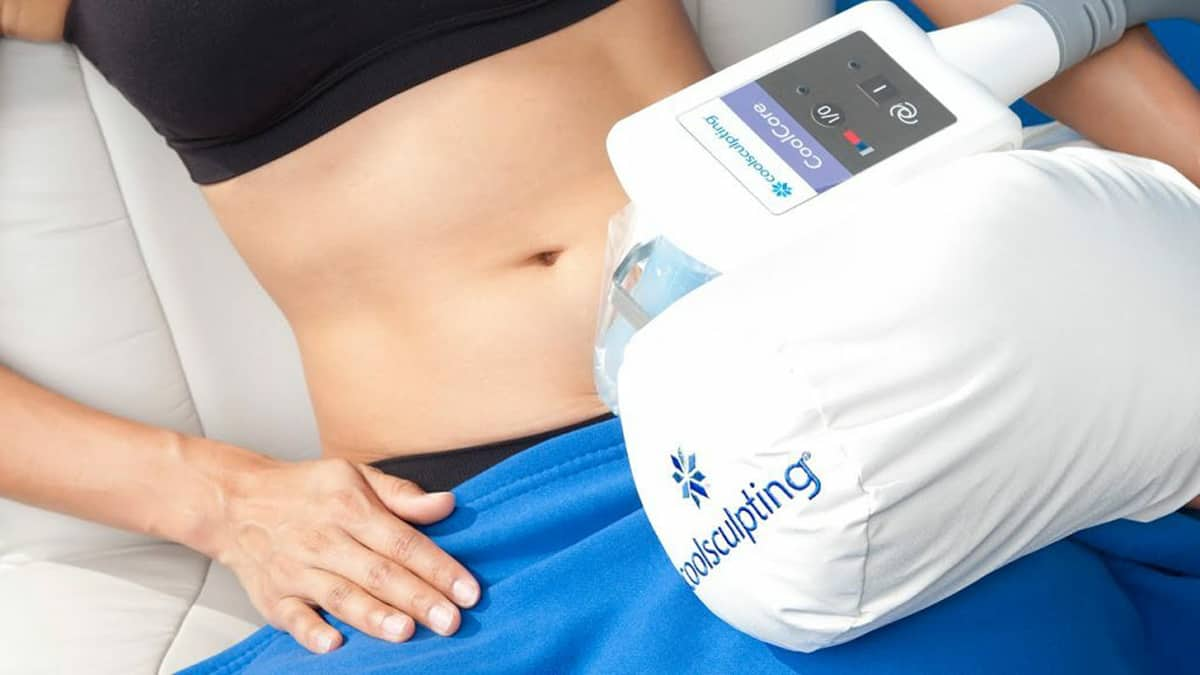 What is CoolSculpting