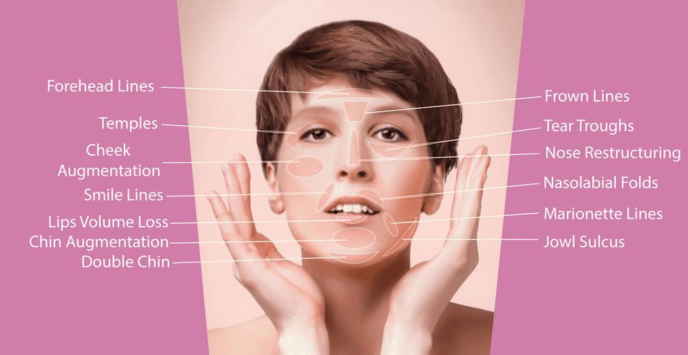 Bellafill Treatments
