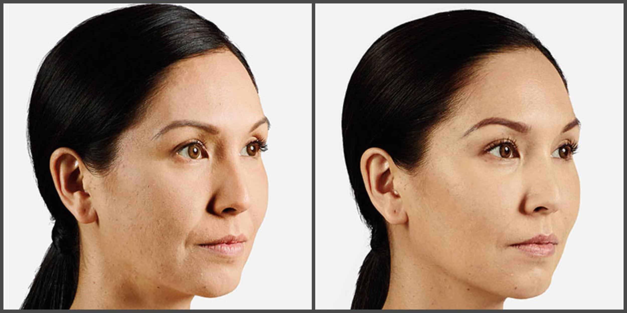 Juvederm Cheeks Before And After