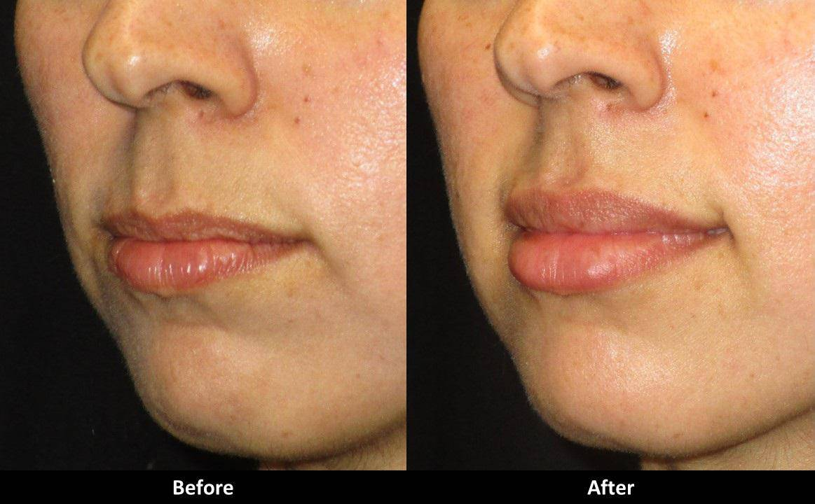 Juvederm Lips Before And After 1 Syringe