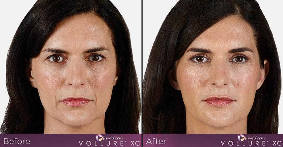 Juvederm Vollure Before And After
