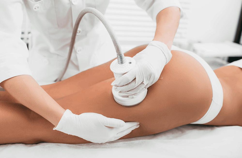 Ultrasonic Cavitation for Cellulite Treatment