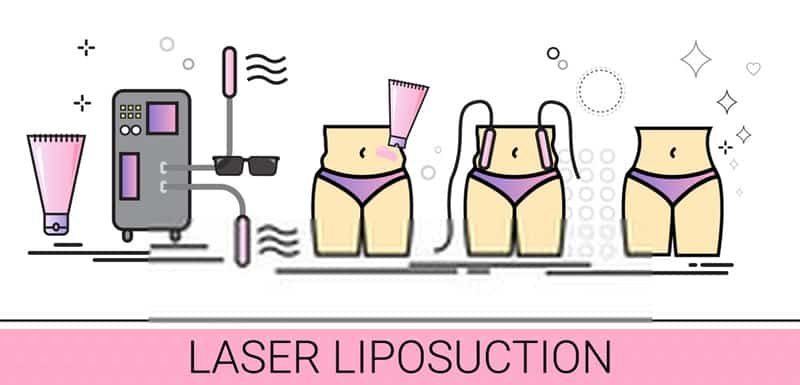 i-Lipo Laser Treatments